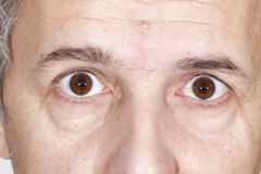 Eye disease Royalty Free Stock Image