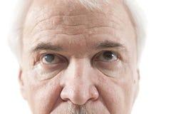Eye disease Stock Image