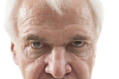 Eye disease Stock Photo