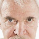 Eye disease Stock Photography