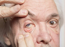 Eye disease treatment Stock Image