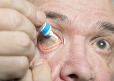 Eye disease treatment. Examination and treatment of patients with cataract and glaucoma eyes Royalty Free Stock Photos
