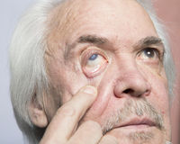 Eye disease treatment. Examination and treatment of patients with cataract and glaucoma eyes Royalty Free Stock Photo