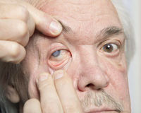 Eye disease treatment. Examination and treatment of patients with cataract and glaucoma eyes Stock Photography
