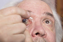 Eye disease treatment Stock Photo