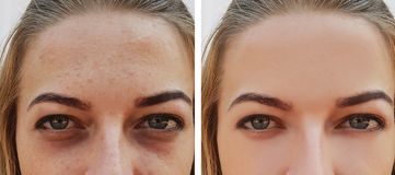 Eye girl bag under the eyes before and after treatment cosmetic procedures royalty free stock images