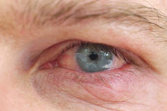 Eye infection. Infection of an eyelid on an eye with contact lens stock images