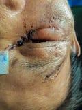 Eye injuries stock image