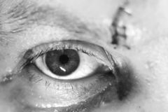 Eye injury bruises and bruises. A blow to the eye.  royalty free stock image