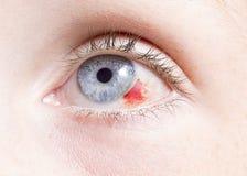Eye injury. Close up of a bloodshot eye looking up damage by an injury Stock Image