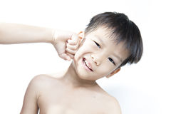 Eye injury after fight. Eye injury, boy with black eye isolated on white. after fight with his brother stock photos