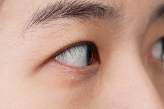 Eye injury or infected for healthy concept, macro closeup Royalty Free Stock Image