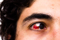 Eye injury. The eye of a young multiracial man showing severe subconjunctival hemorrhage Royalty Free Stock Photo