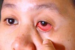 Eye Irritation Stock Images