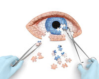 Eye operation. (vision correction) puzzle concept: hands of surgeon with surgical instruments (tools) performs eye (ocular) surgery Stock Photos