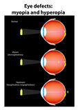 Eye optical defects : myopia and hyperopia. vector Royalty Free Stock Photo