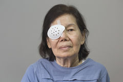 Eye shield covering after cataract surgery. Royalty Free Stock Image