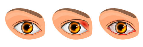 Eye suffering from conjunctivitis and styes Stock Image