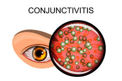 Eye suffering from conjunctivitis and styes vector illustration