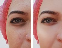 Eye swelling, wrinkles before and after cosmetic pigmentation procedure royalty free stock photography