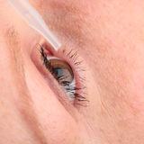 Eye Treatment Royalty Free Stock Photography