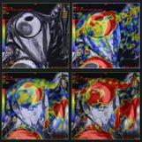 Eye tumor - melanoma, MRI Royalty Free Stock Photography