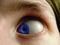 Eye Turned In. Blue Eye turned in toward the nose, closeup Royalty Free Stock Photos