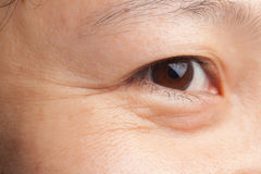 Eye wrinkles stock images
