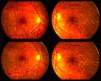 Eyeballs. Medical test of my eyeballs Royalty Free Stock Images