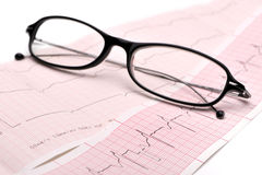 Eyeglasses and cardiogram Royalty Free Stock Photography