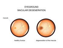 Eyeground. degeneration of the macula. Vector illustration of the fundus. degeneration of the macula Royalty Free Stock Photo