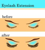 Eyelash extension before and after, vector illustration. Eyelash extension before and after effect, vector illustration Stock Image