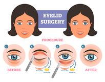Free Eyelid Surgery Procedure Before After Illuatration With Main Steps. Excess Skin And Fat Removal. Royalty Free Stock Photo - 110211255