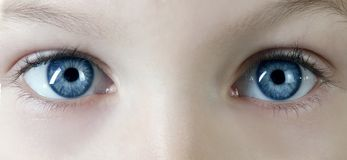 Free Eyes Royalty Free Stock Image - 3847546