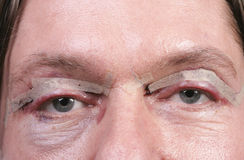 Eyes after eyelid surgery Royalty Free Stock Images