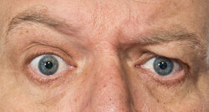 Eyes of a man showing confusion, surprise stock image