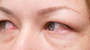 eyes red royaltyfri bild