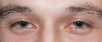 Eyes. Tired eyes of the young man Royalty Free Stock Photography