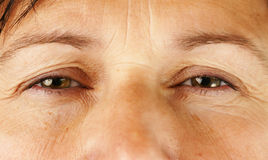 Eyes of very sick or tired person. Healthcare, medical or aging concept: swollen red eyes of a wrinkly middle age woman, perfect for allergies, eye infection Royalty Free Stock Photos