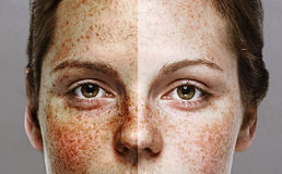 Eyes Woman freckle happy young beautiful studio portrait with healthy skin half Stock Image