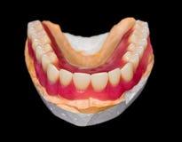 Fäll ned tandprotesen Arkivbilder