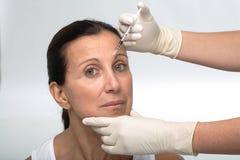 Fälliges Frau botox Lizenzfreies Stockfoto