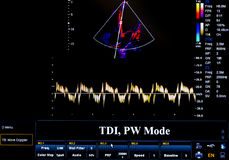 Färgglad ultraljudbildskärmbild TDI PW-funktionsläge Royaltyfria Bilder