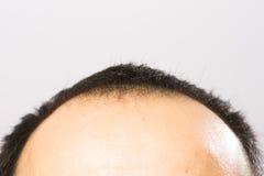 Få skalligt Arkivbilder