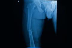 Fêmur do direito da fratura do raio X do filme Foto de Stock