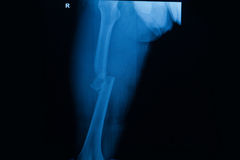 Fêmur do direito da fratura do raio X do filme Fotografia de Stock Royalty Free