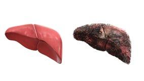 Fígado saudável e fígado da doença no isolado branco Conceito médico da autópsia Câncer e problema de fumo fotografia de stock