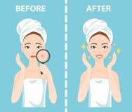 För-efter uppsättning av den upprivna och lyckliga kvinnan med kvinnliga ansikts- hudproblem behöver att bry sig omkring: akne fi Arkivfoto