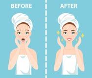 För-efter uppsättning av den upprivna och lyckliga kvinnan med kvinnliga ansikts- hudproblem behöver att bry sig omkring: akne fi Royaltyfri Fotografi