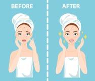 För-efter uppsättning av den upprivna och lyckliga kvinnan med kvinnliga ansikts- hudproblem behöver att bry sig omkring: akne fi Arkivfoton